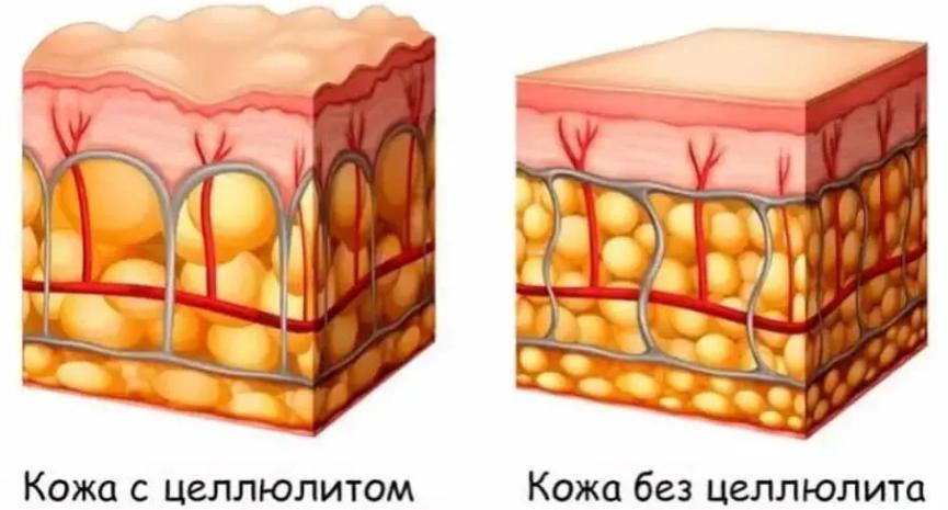 Массаж антицеллюлитный противопоказания