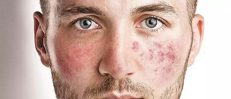 Чем лечить купероз на лице -изображение записи