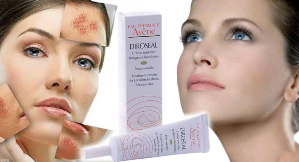 Чем лечить купероз на лице и держать под контролем