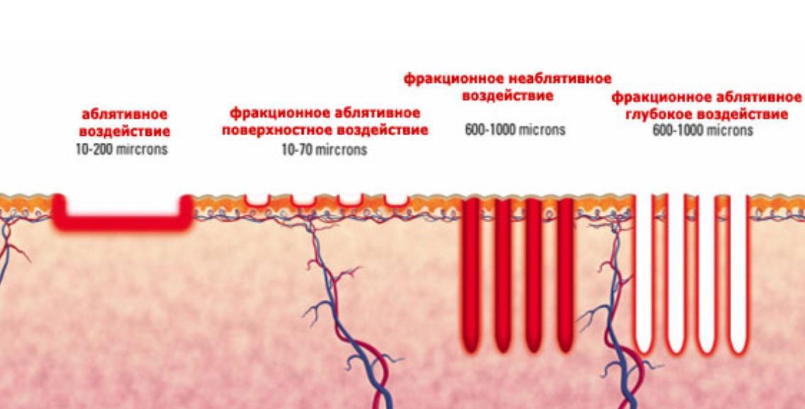 Лазерное омоложение кожи —максимальный эффект