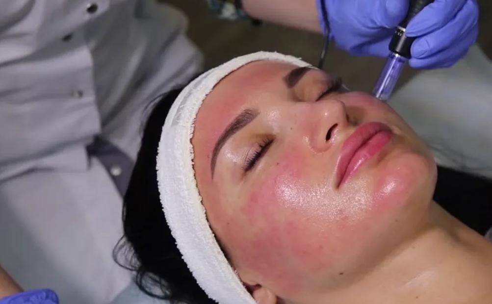 Микронидлинг лица - покраснение сразу после