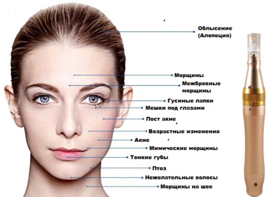 Микронидлинг лица – разновидность косметического ухода