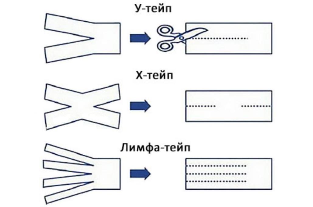 Тейпирование лица - схемы и техника наложения для лифтинг-эффекта